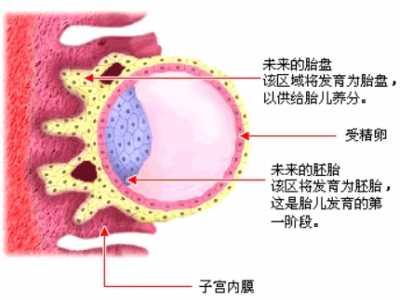 先兆流产症状 早孕阴道出血=先兆流产